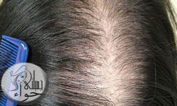 الأثار الجانبية الأكثر شيوعا لزراعة الشعر