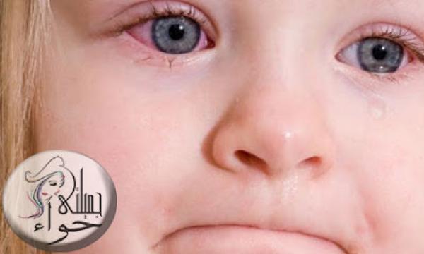 طرق علاج احمرار جفن العين للرضع