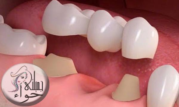 كل ما تريد معرفته عن تركيب الاسنان